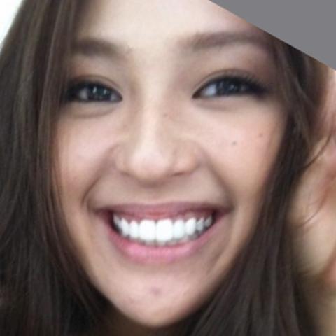 【治療後】23歳のときの中村アンの歯並び画像